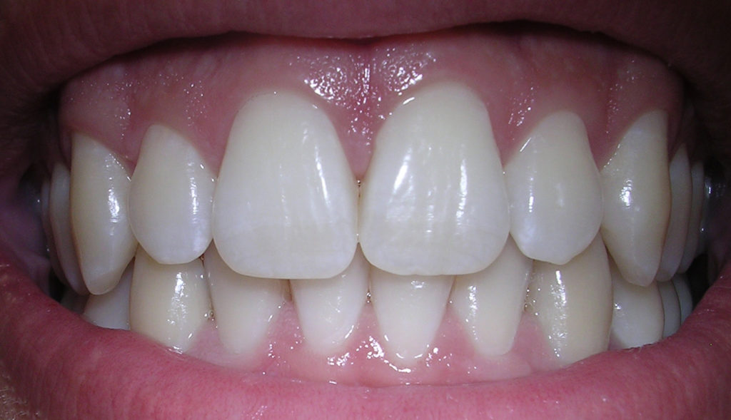 Best Ways to Prevent Your Gums from Bleeding | Lasting